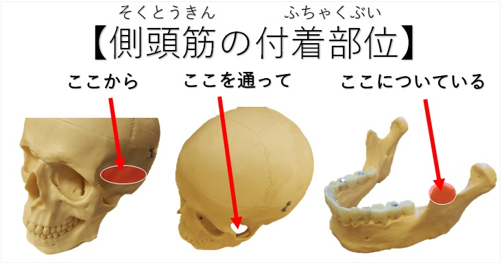 側頭筋の付着部位の説明