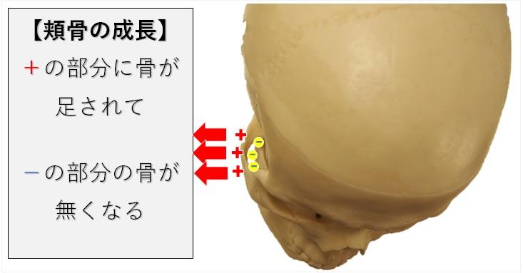 頬骨の骨添加と骨吸収