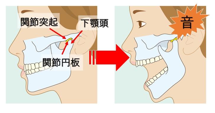 顎関節の構造と各部位の説明