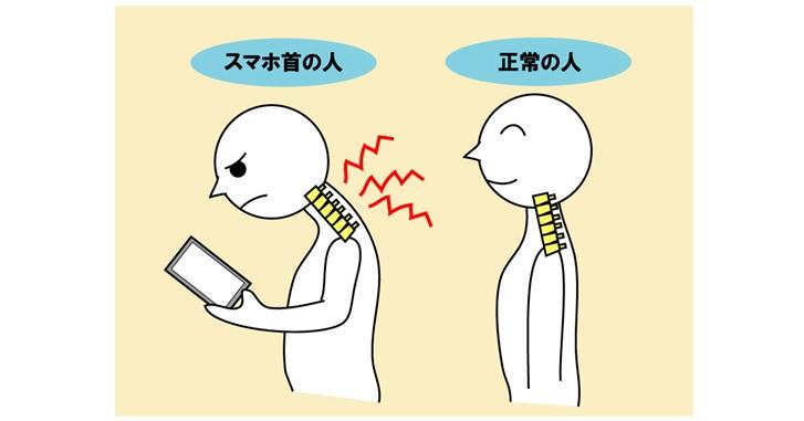 スマホ首と正常首の比較