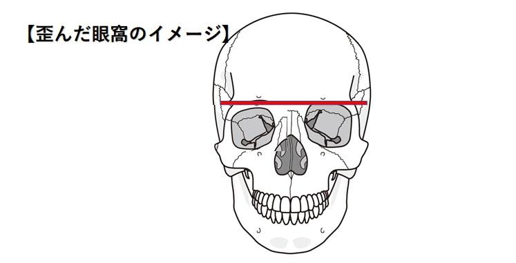 歪んだ眼窩のイメージ