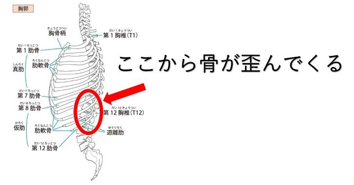 胸腰椎骨移行部の画像