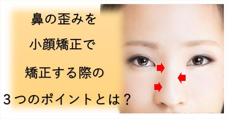 鼻の歪みを小顔矯正で矯正する際のポイントを説明したブログのイメージ画像