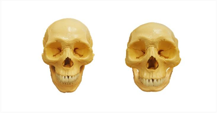 アゴがある頭蓋骨とアゴがない頭蓋骨