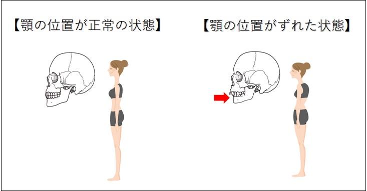 顎の位置と姿勢の関係