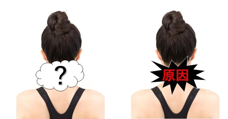 首の痛みの原因は多岐にわたる