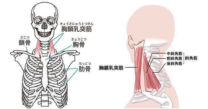 骨格と体表での胸鎖乳突筋