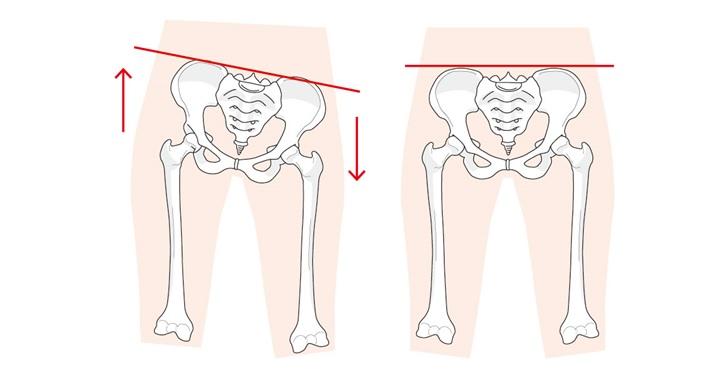 骨盤の歪みがあると足の太さが変わる