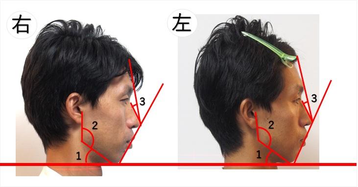 横顔の検査ライン