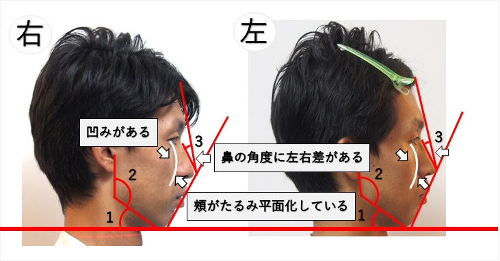 横顔ブスを説明した画像