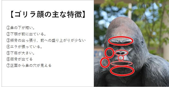 ゴリラ顔の特徴