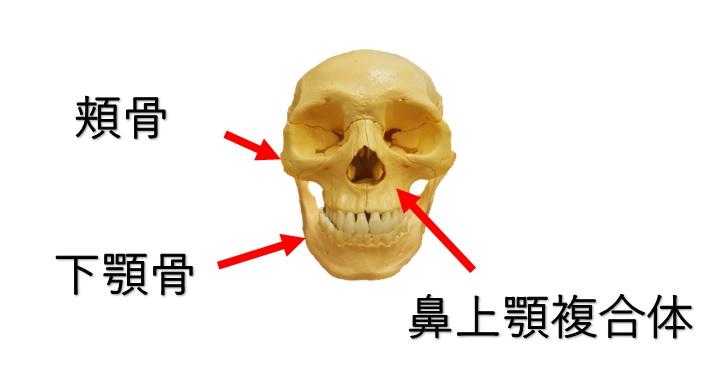 下顎骨と頬骨と鼻上顎複合体の図示