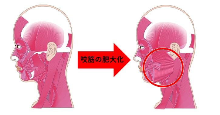 咬筋の肥大化の対比イメージ