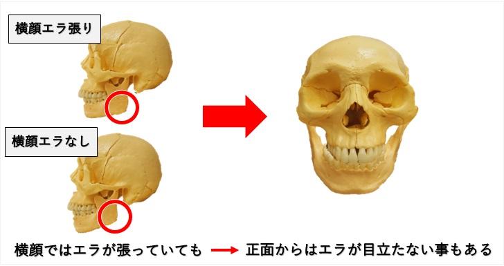 横顔のエラ張りと正面顔のエラ張りの不一致