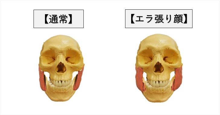 通常顔とエラ張り顔の対比