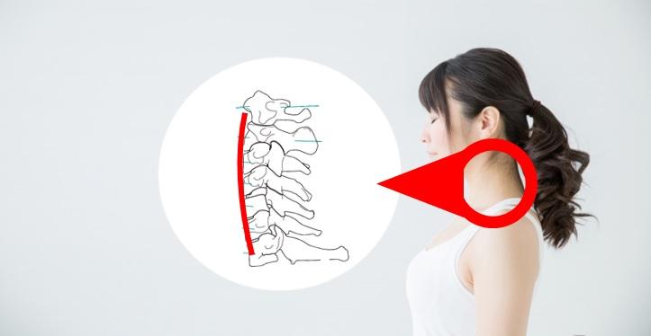 頸部の軽度前弯