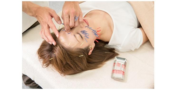 リビジョン鍼灸院で行う美容鍼