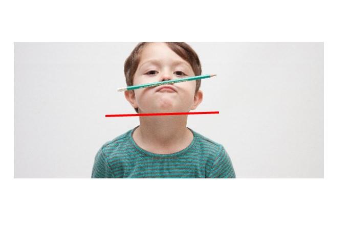 下顎角の左右差