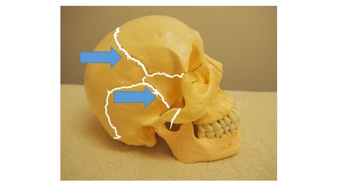 顔面骨縫合