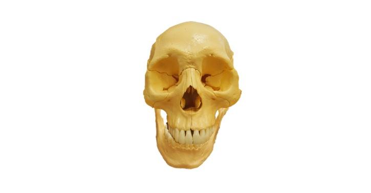 下顎骨のズレ・歪み