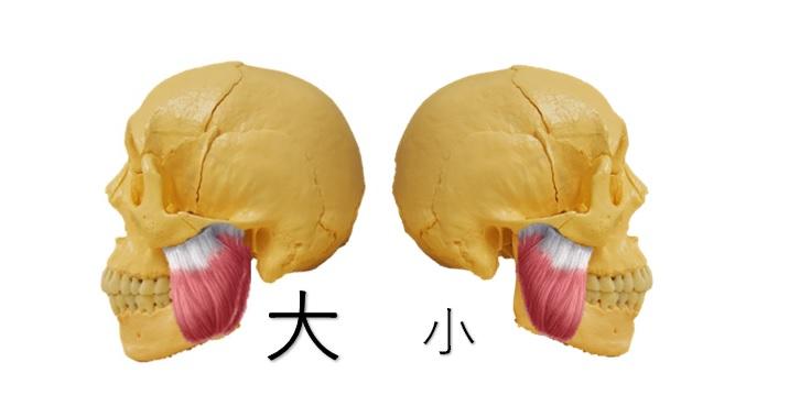 横から見た咬筋の大小