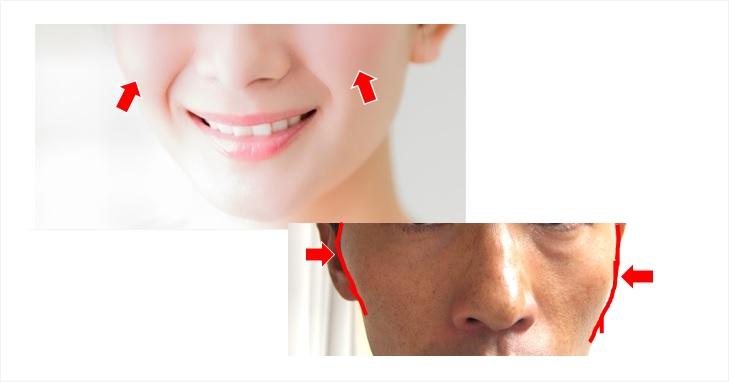 頬肉と頬骨の出っ張りの画像