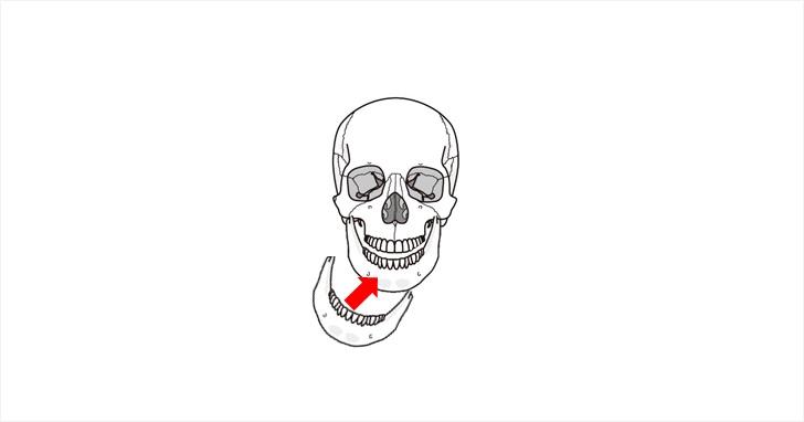 顎のポジションを治すイメージ