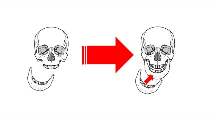 顎引くは顎の位置が改善する
