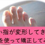 足の小指が変形してきた場合の対処法のブログトップ画像