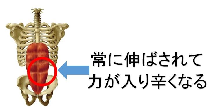 骨盤の歪みと腹筋の不活性