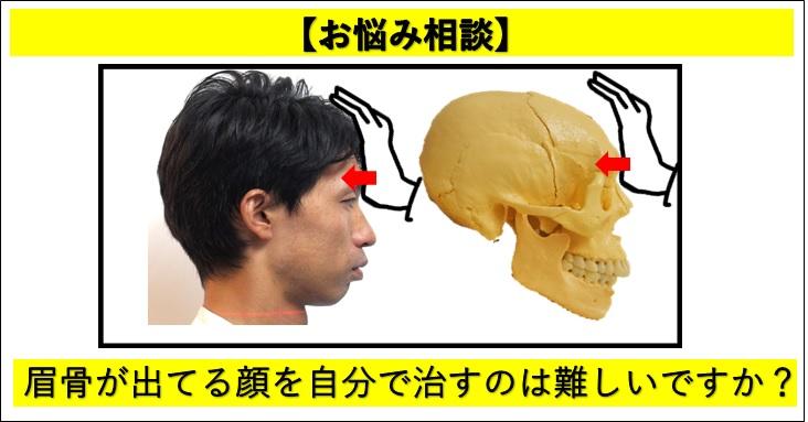 眉骨が出てる顔を治せるのかを説明したブログのイメージ画像