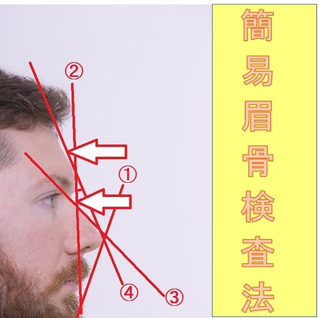 簡易眉骨検査方法