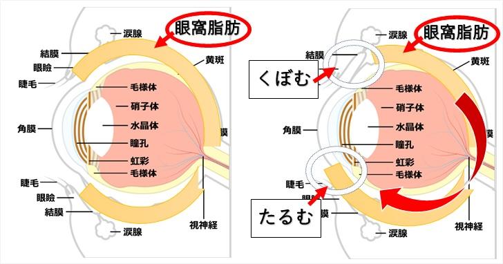 加齢による眼窩脂肪の変化