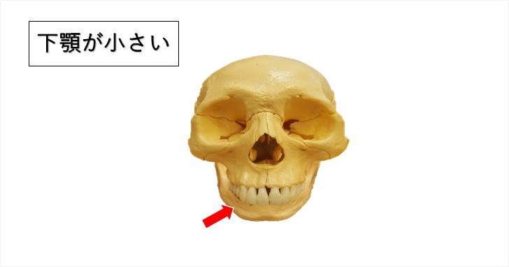 頬が目立つ原因その三下顎が小さい