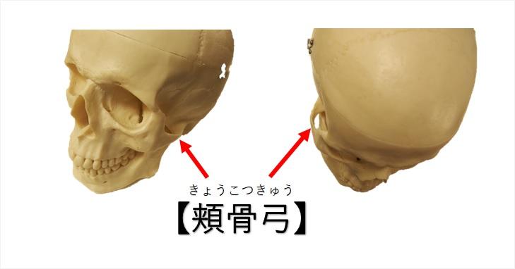 頬骨弓の図示