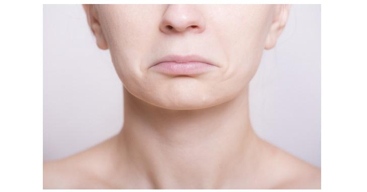 への字口で口角のたるみが出る女性