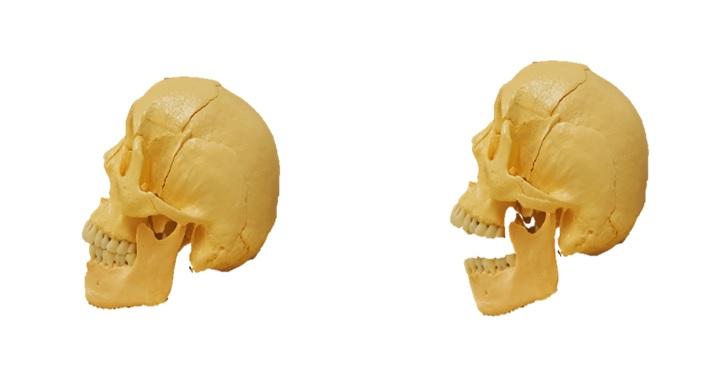顎の開口を表した画像
