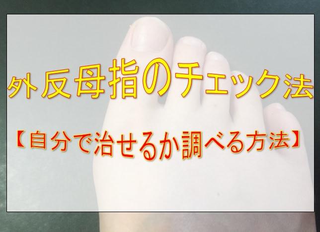 外反母趾のチェック法