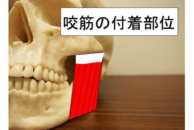 咬筋の付着部位