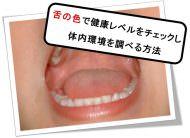 舌の色で健康状態を調べる