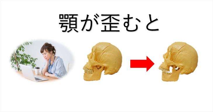 頬杖で顎が歪む事を頭蓋骨を用いて説明