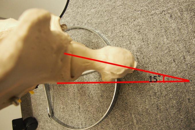 大腿骨前捻角15度