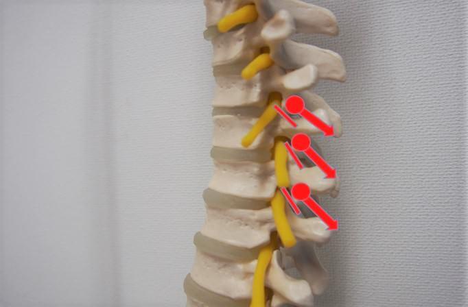 胸椎伸展骨運動