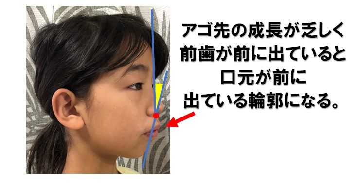 口元の前突を説明した画像