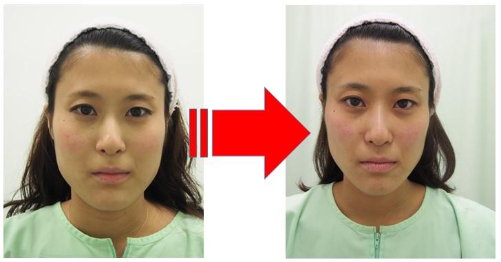 顔の歪みのbrforeafter