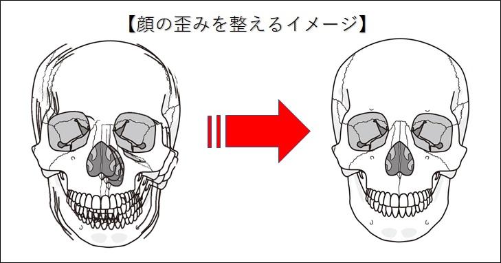 顔の歪みを整えるイメージ