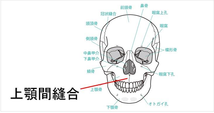 上顎間縫合