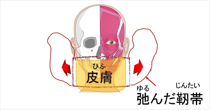 弛んだ皮膚と靭帯マスクイメージ