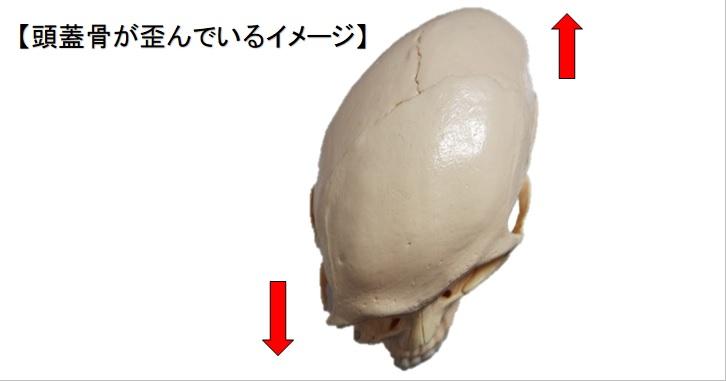 頭蓋骨が歪んでいるイメージ