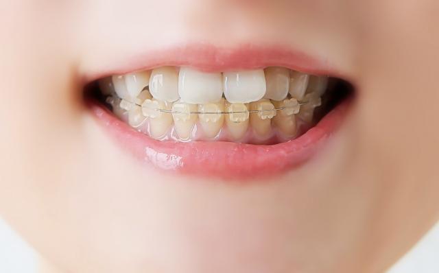 歯列の矯正